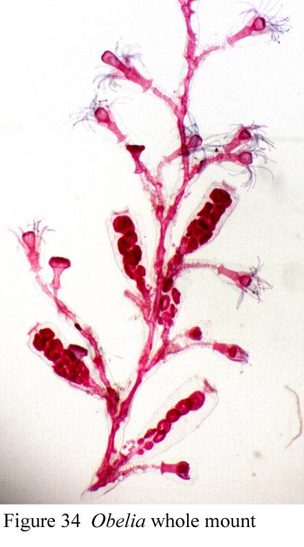 The Phylum Cnidaria